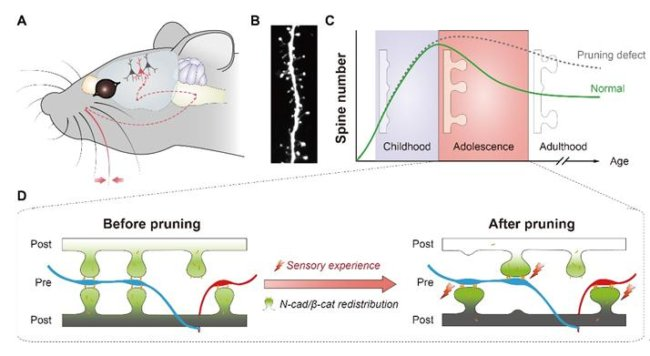 A mouse model of spine pruning. Credit: Yu Xiang/CAS.